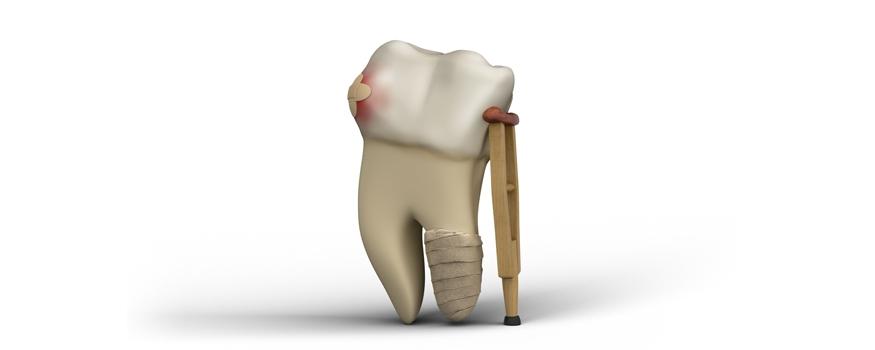 dent visible a travers gencive